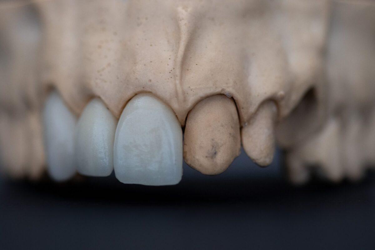 銀歯で虫歯の発生率が高くなる