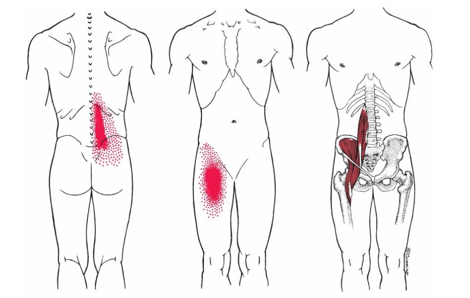 腸腰筋の硬結による痛みの部位